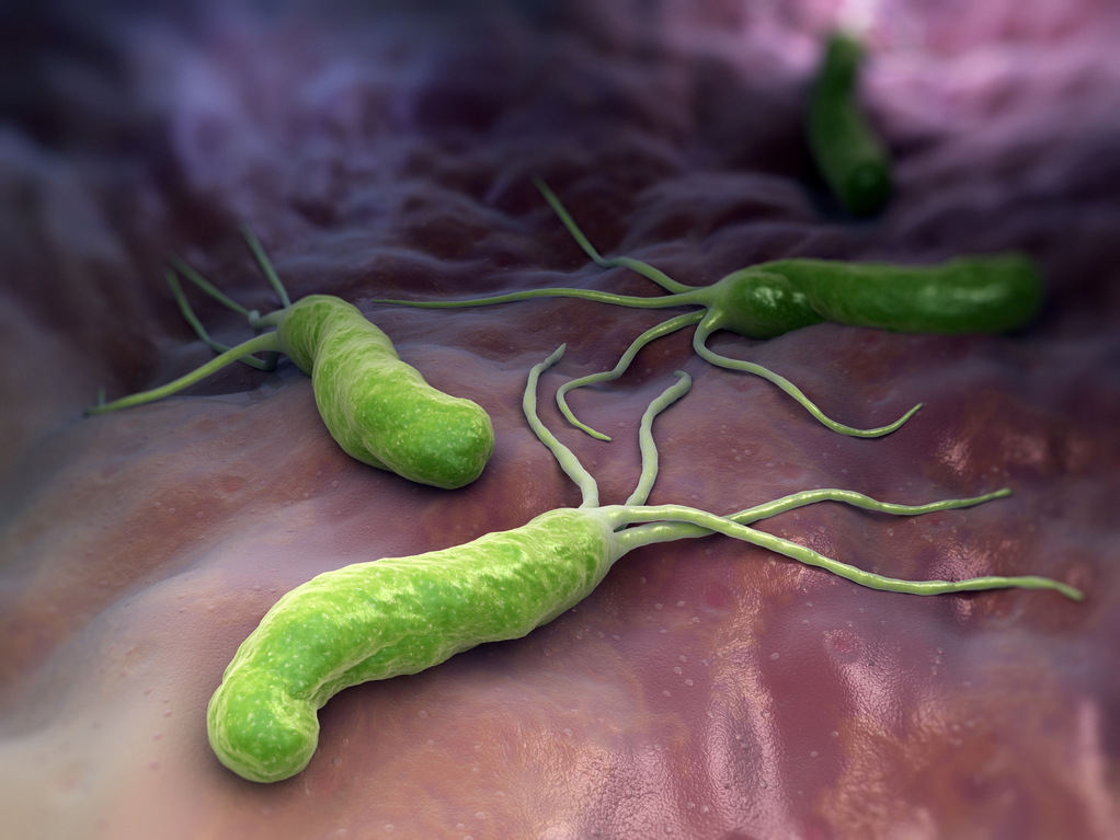 This bacteria is a time bomb in your stomach