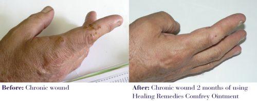 Comfrey oitment has healed chronic wounds