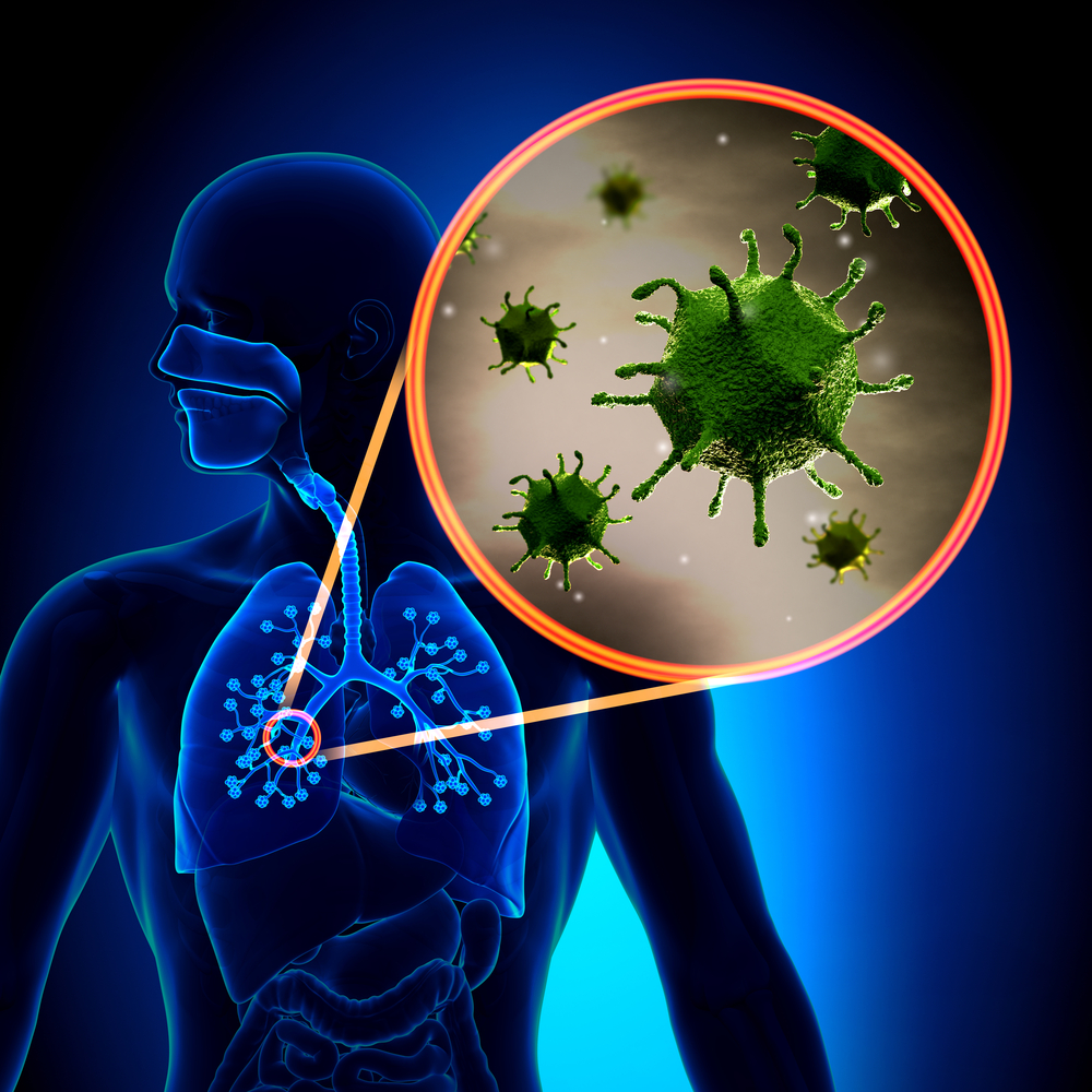 EBV infection linked to autoimmune conditions